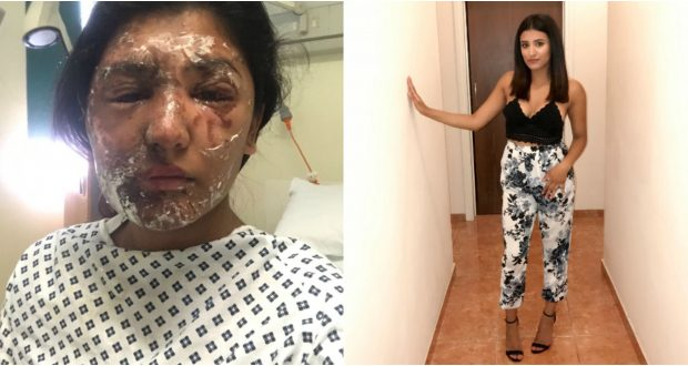 Resham Khan attacked with sulphuric acid on her 21st birthday - Photo Go fund me