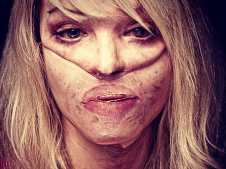 Katie Piper-acid attack survivor, came to KU to inspire students with disabilities