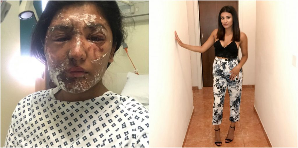 Acid attacks: the under 18s ban is not good enough