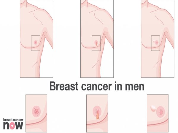 The image is showing the symptoms of breast cancer in men